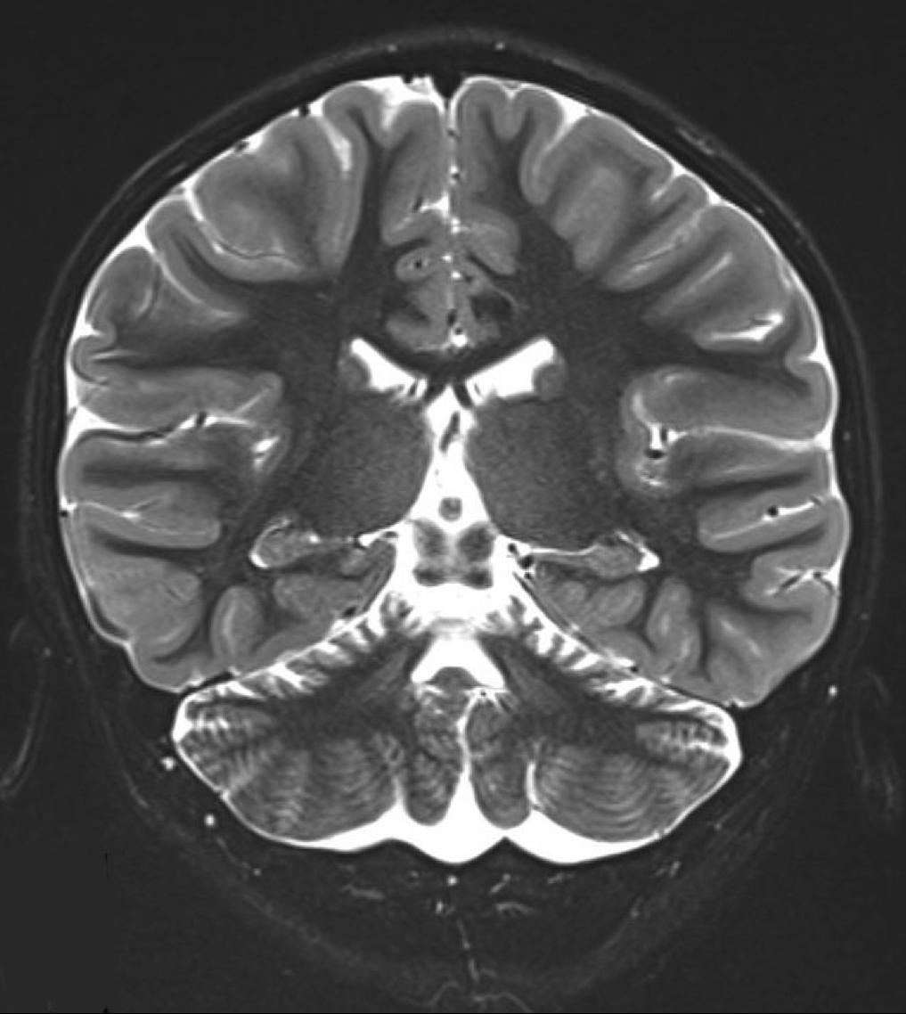 小脳低形成・萎縮症 | NCNP病院 ...
