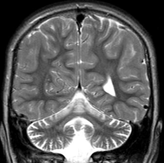 萎縮 小脳